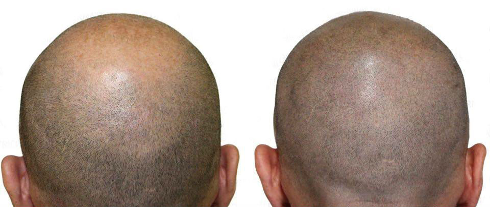 Hair micropigmentation